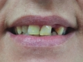 absolute cliponsmile beforeafter5