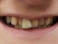 clip-on-smile-before-n-after