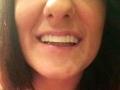 smiling clip on veneers