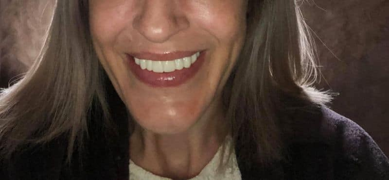 tracey-after-clip-on-veneers