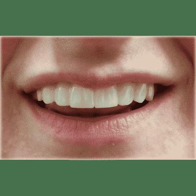Clip On Veneers - Instant Snap On Veneers