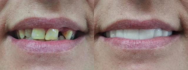 absolute clip on smile before & after shade bl1