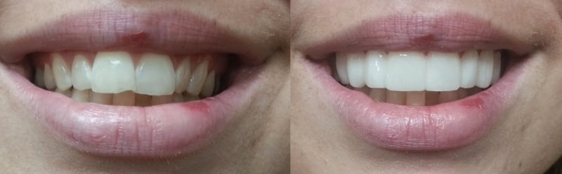 Before and afters shade Bl3 Clip On Veneers