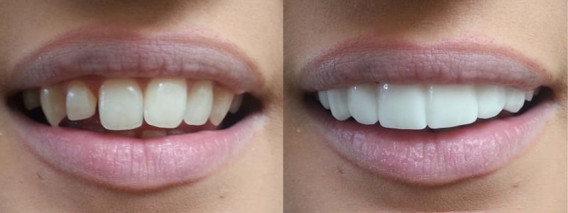 clip-on-veneers-bleach-shade-bl1-before-afters