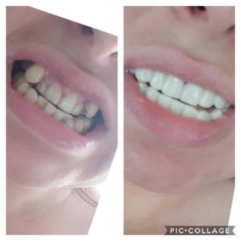 mia-rose-clip-on-veneers-before-and-after
