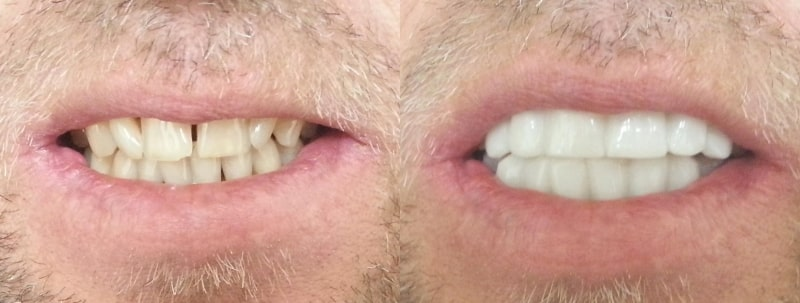 clip on veneers before and after