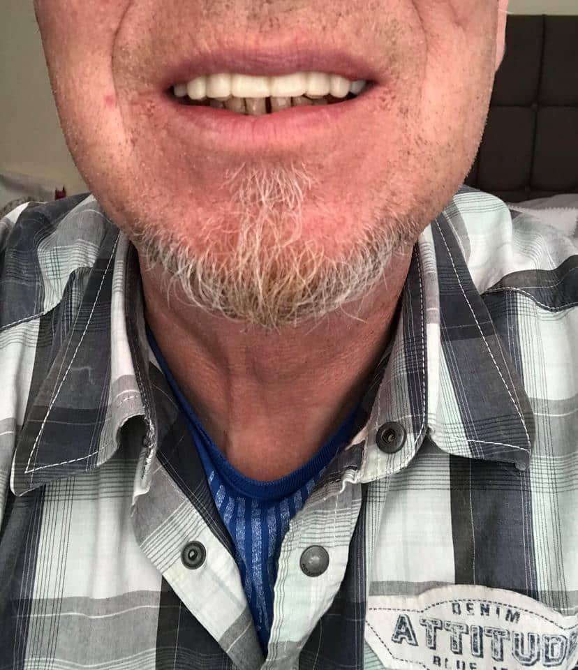steve after clip on veneers